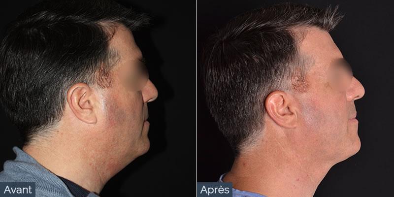 liposuccion visage avant apres