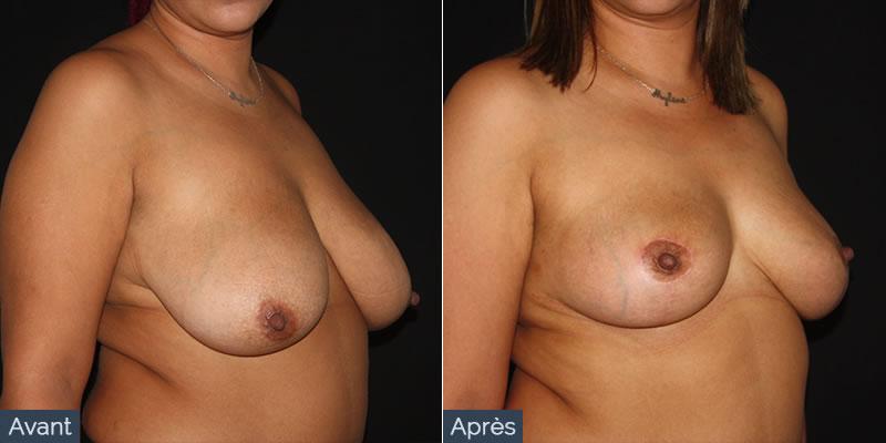 reduction mammaire avant apres